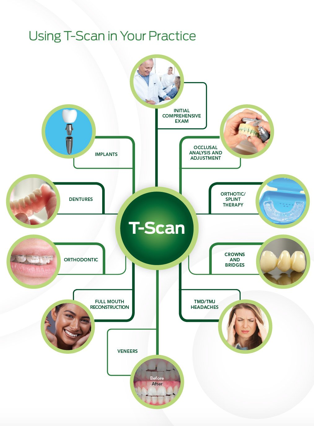 T-Scan